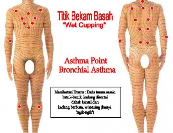 wet-cupping